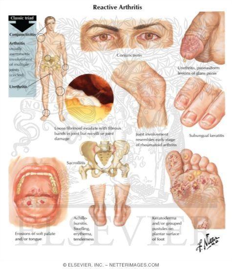 3ce1fc6c8a2851a782cdb9485ca56de3 - How Long Does It Take To Get Over Reactive Arthritis