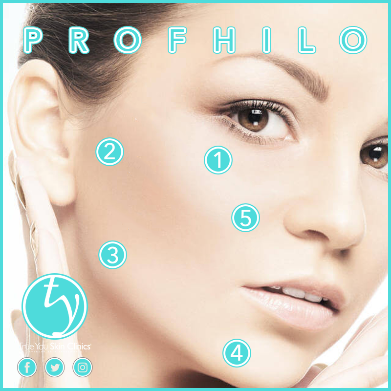 5 injections points, 5 great reasons to have Profhilo! 1
