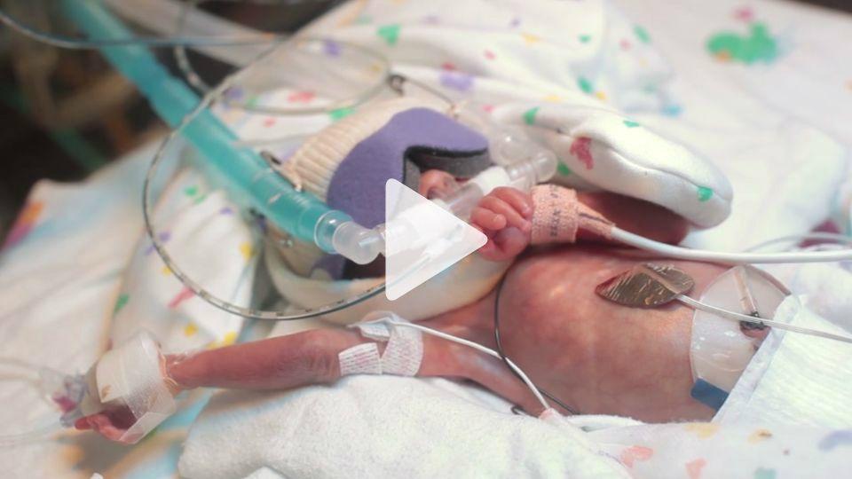 Wunderschones Video Zeigt Die Grosse Starke In Diesem Kampfer Fruhchen Schlummert Live ActionSick BabyPhotos