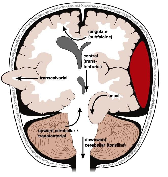 Brain Herniation   Radiology, Emergency medicine, Neurology
