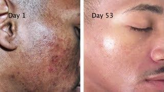 Meladerm Review 2020 Results Benefits Side Effects Prices Askmaryrd Hyperpigmentation Exposed Skin Care Meladerm