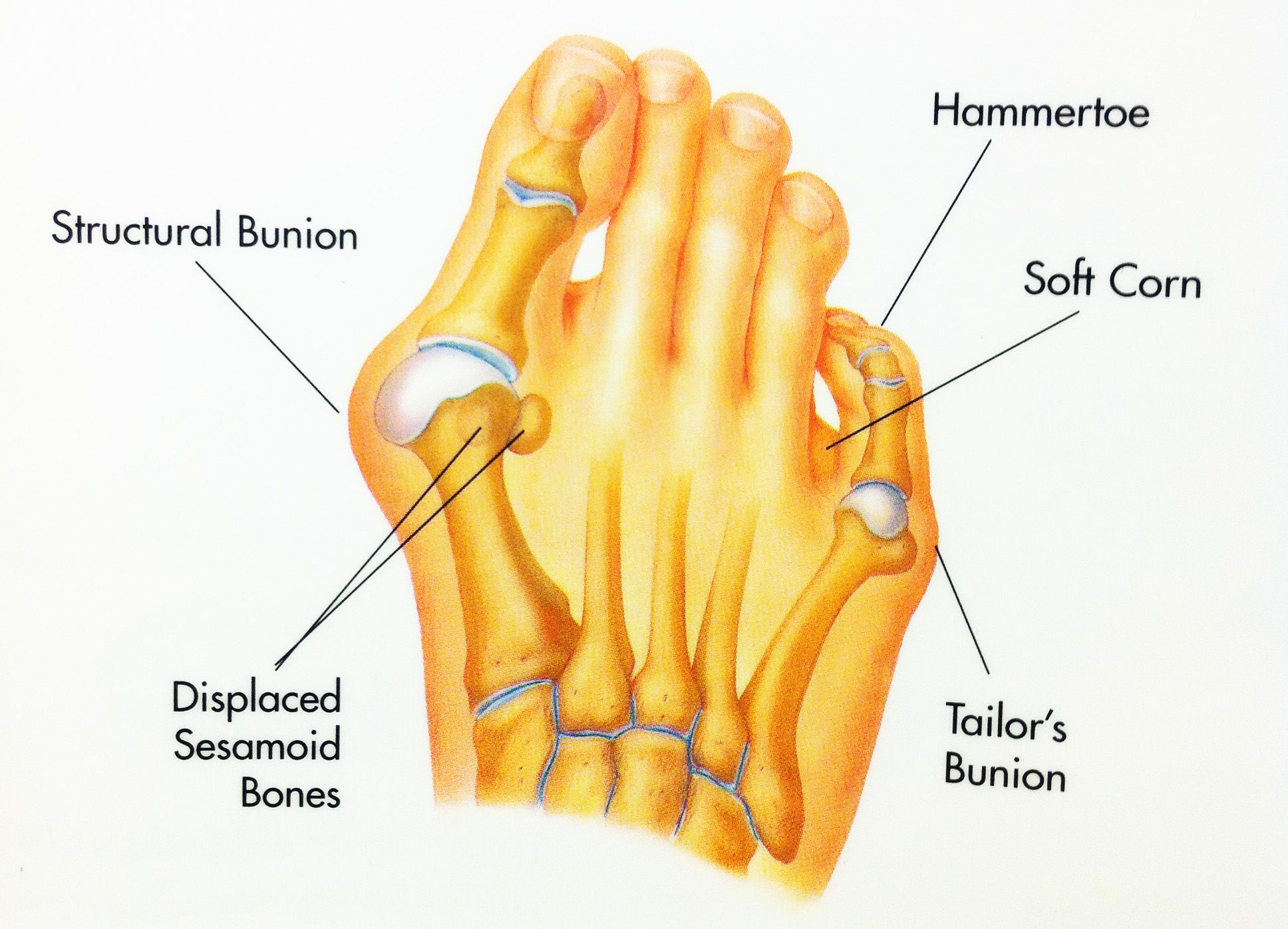 WHAT IS A HAMMERTOE? A hammertoe is an abnormal contracture of a ...