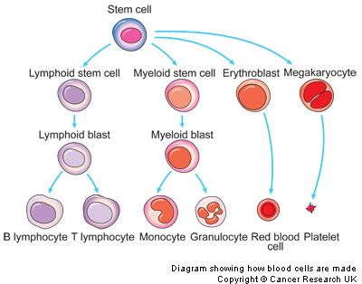 Chronic Lymphocytic Leukemia Diagram   Haematology   Hematology, Blood cells, Nursing labs