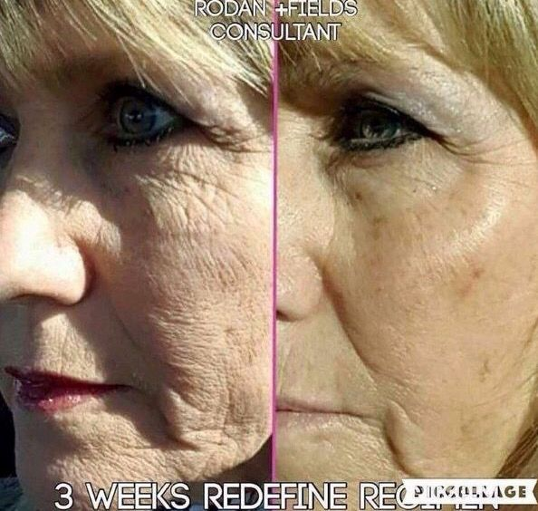 rodan fields life changing skincare before after20