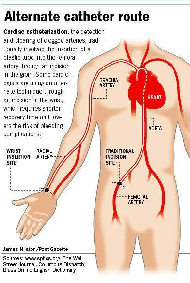 Cardiac Catheterization Coder On Board Pinterest Cardiac
