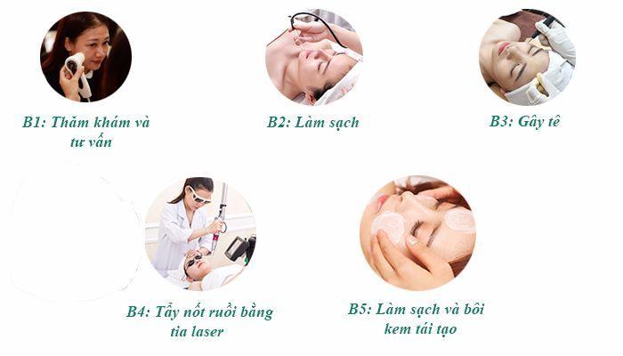 Quy trình tẩy nốt ruồi  bằng laser tại Reborn skin clinic