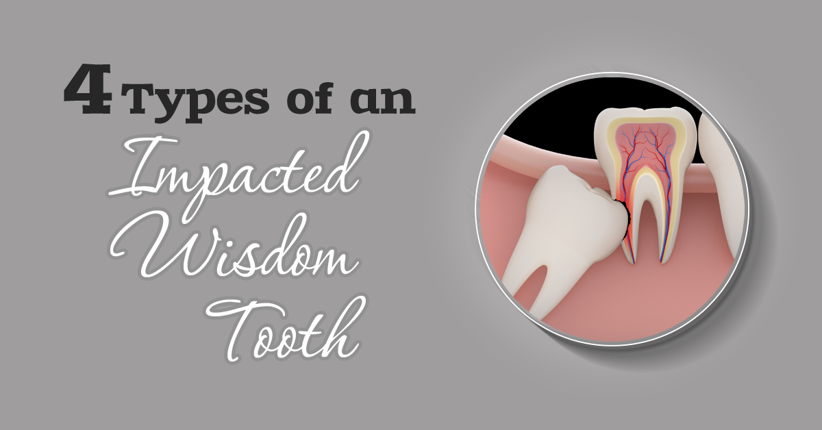 4 types of an impacted wisdom tooth are Angular