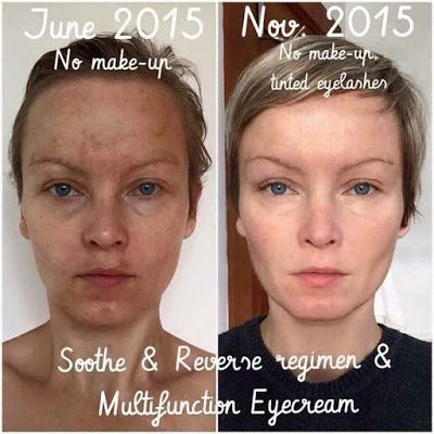Rodan Fields Reverse Regimen Results Reverse Before And