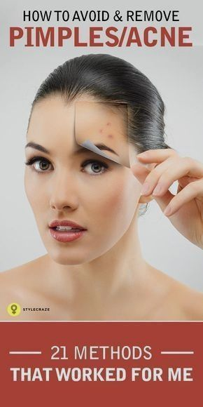 Here are 21 effective ways given on how to avoid pimples Follow for a