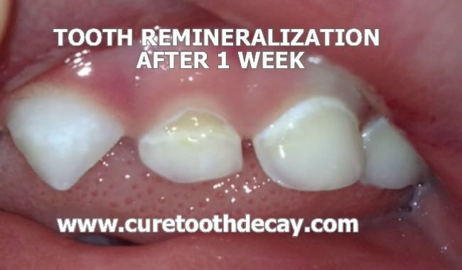 What Causes Cavities And How To Heal It Naturally Healthy Teeth Oral Care Cavities