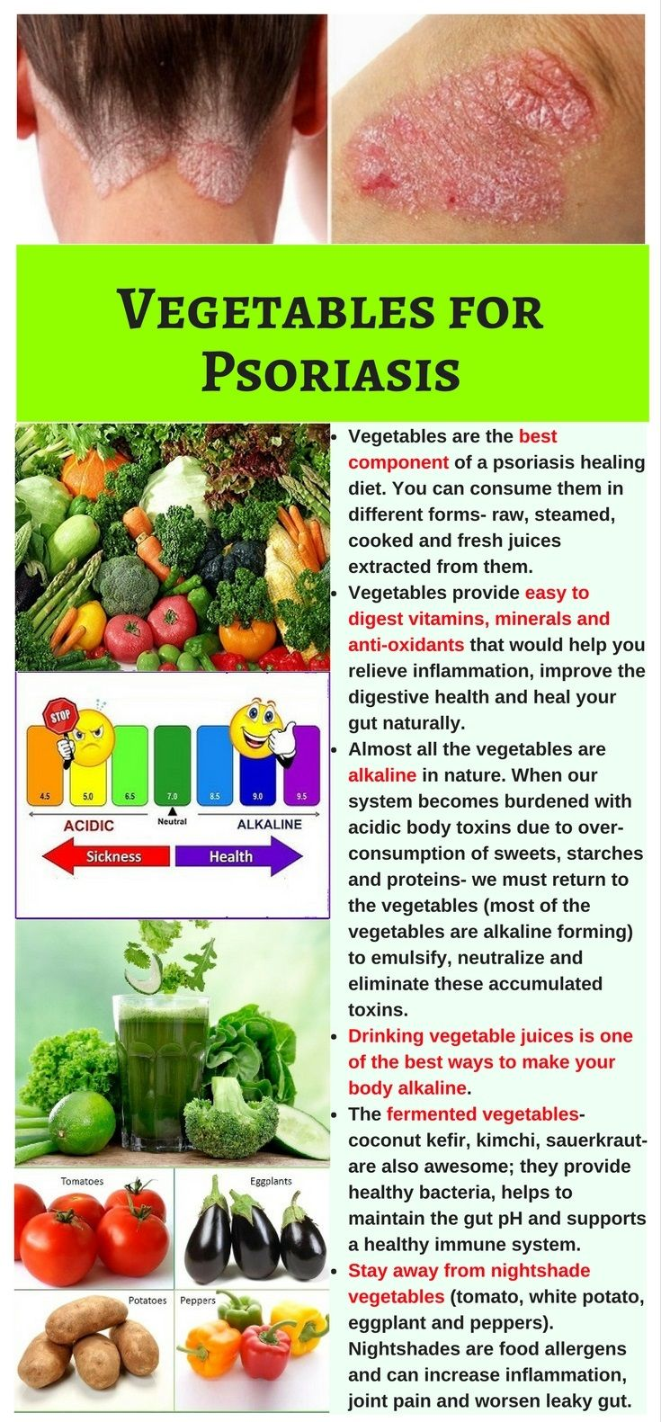 Vegetables Are The Best Ingredients Of A Psoriasis Healing Diet They Are Easy To Digest Make Your Body Alkaline Psoriasis Healing Healing Diet Psoriasis Diet