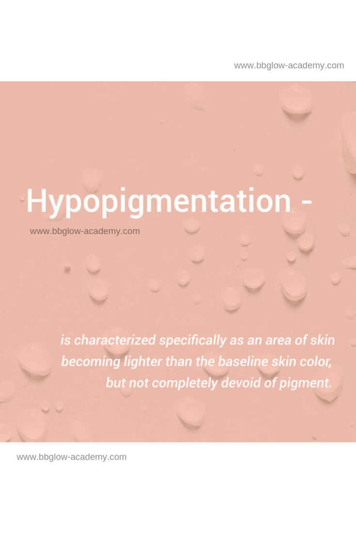 Hypopigmentation Skin Facts Beauty Skin Quotes Healthy Skin Care