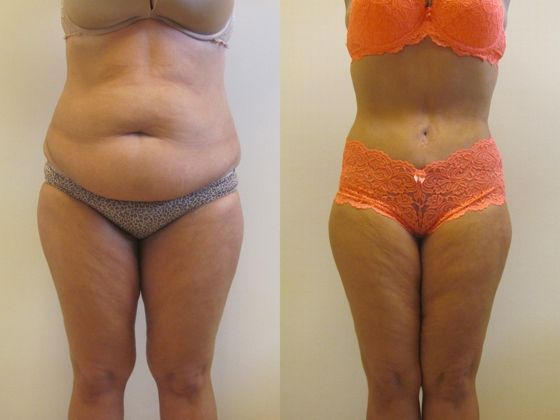 Because I can and I want to  Tummy Tuck Tampa, Florida
