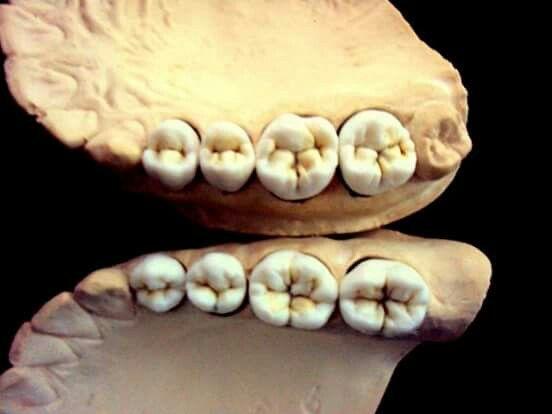 Pin von Rafaela NR auf encerados dentales_ moch up /wax up ...