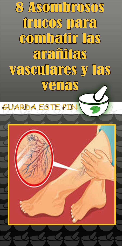 8 Asombrosos Trucos Para Combatir Las Arañitas Vasculares Y Las Venas Trucos Arañas Vasculares Venas Health Tips Remedies Natural Health