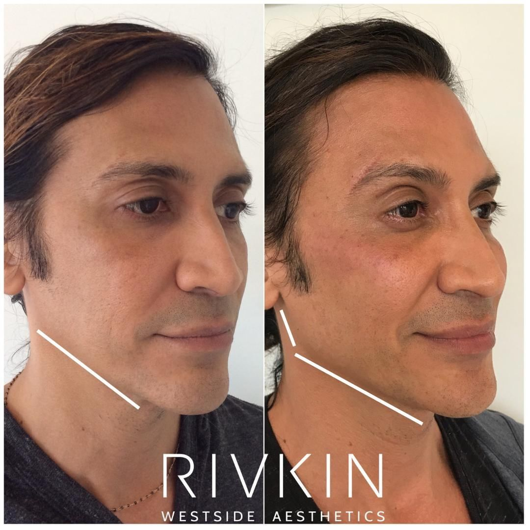 2016 to 2019! This patient started with Radiesse in his