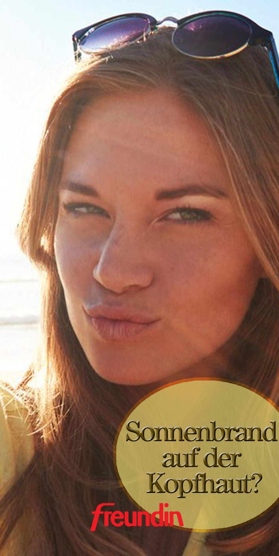 Sonnenbrand auf der Kopfhaut: Was hilft? (mit Bildern