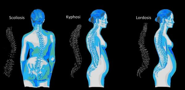 21+ Osteoporosis hump at top of spine ideas