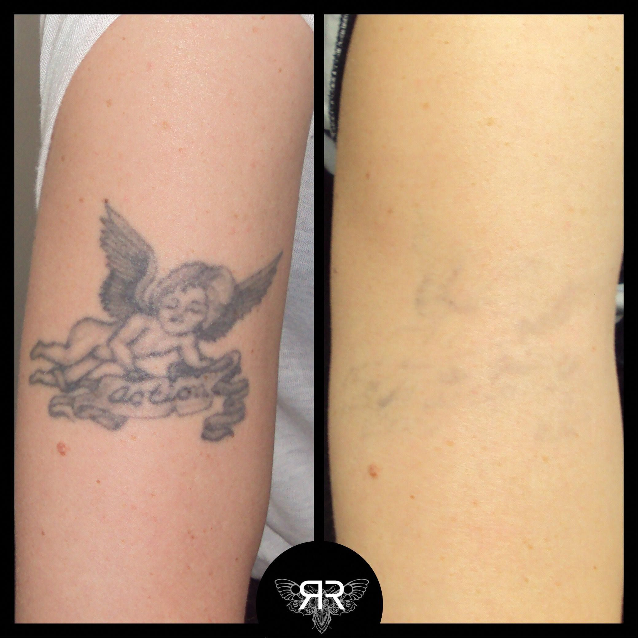 x5 PicoSure sessions tattooremovalpicosure