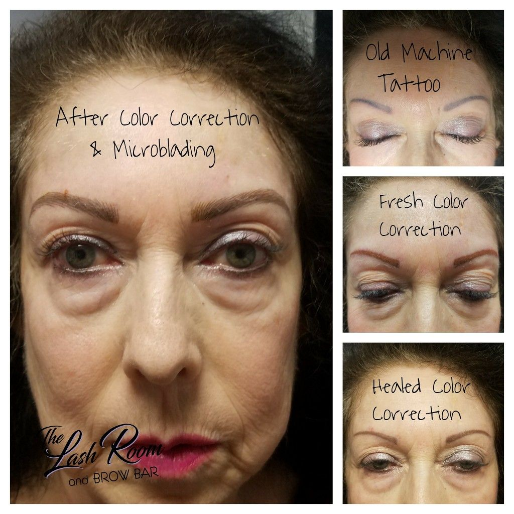 Color Correction Session Followed By Microblading Session 7 Weeks