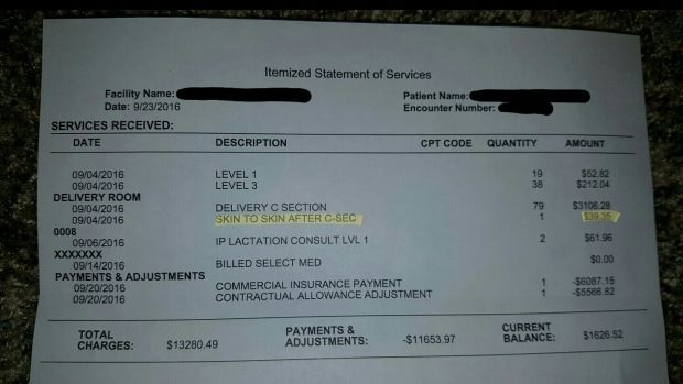 Hospital bill shows $39 charge for skin-to-skin contact after C-section - CTV News