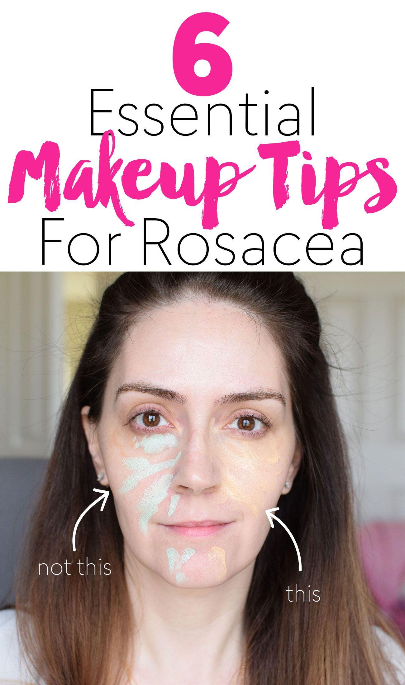6 essential makeup tips for rosacea beauty knowledge. Black Bedroom Furniture Sets. Home Design Ideas