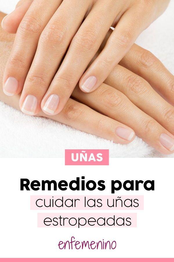 Remedios para cuidar las uñas estropeadas