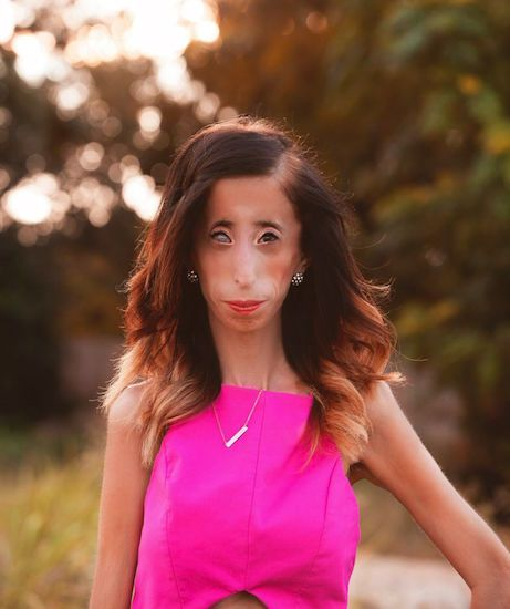 To The Person Who Called Me The World S Ugliest Woman In A Viral