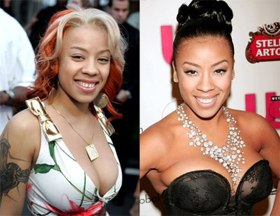 Keyshia Cole decided to update her grin and it made it huge difference. www.advanced-smiles.com