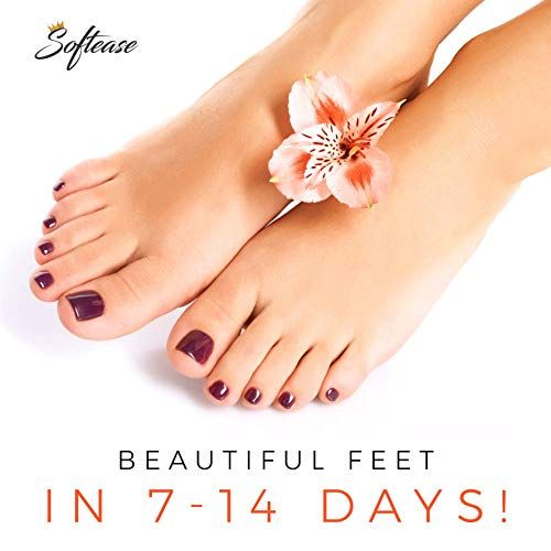 exclusive shoes huge selection of vast selection QUICKLY SOFTENS ROUGH FEET removing tough calluses and dead ...