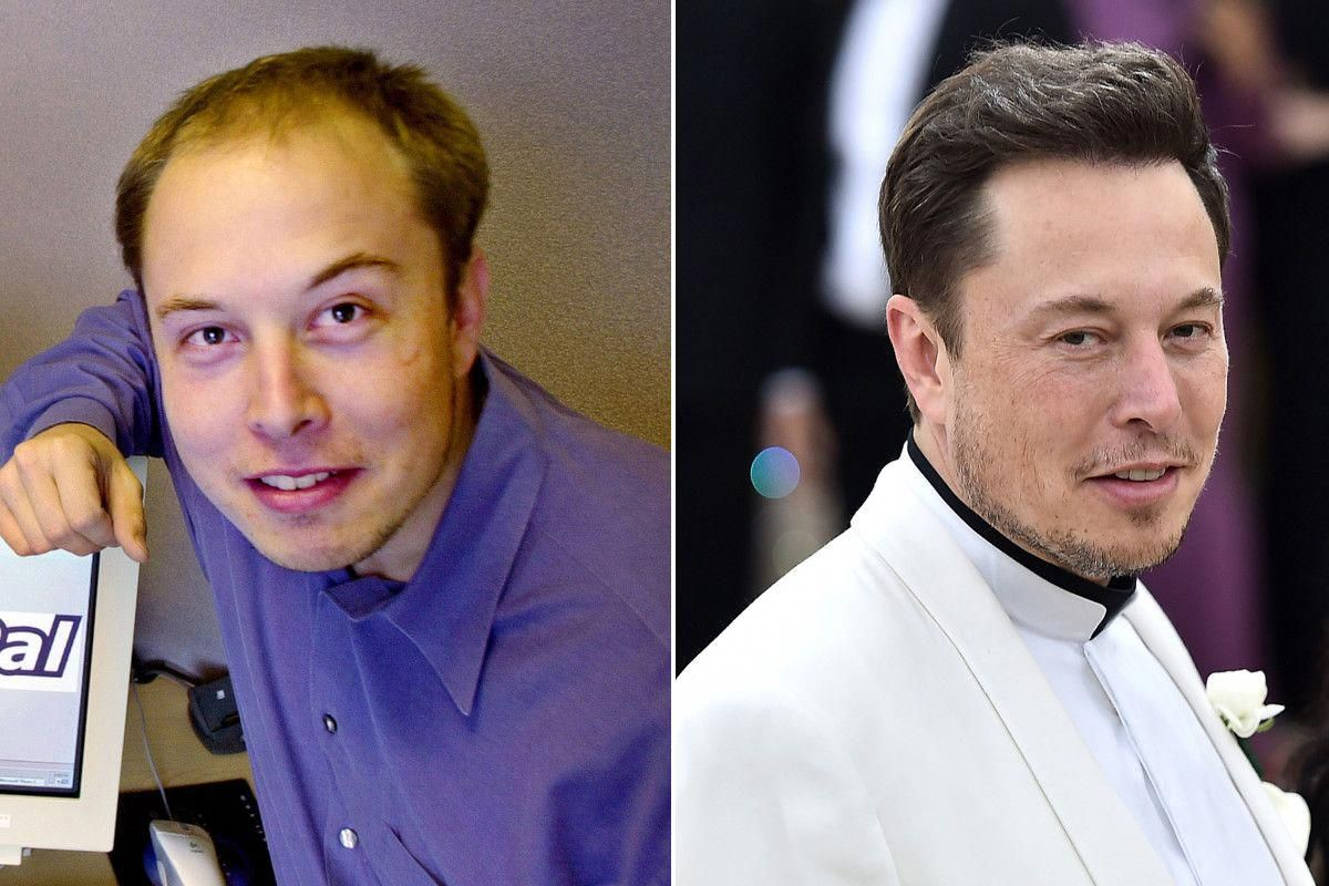 It's 'highly likely' Elon Musk spent over $20K on hair transplant surgery, doctor says | Hair ...