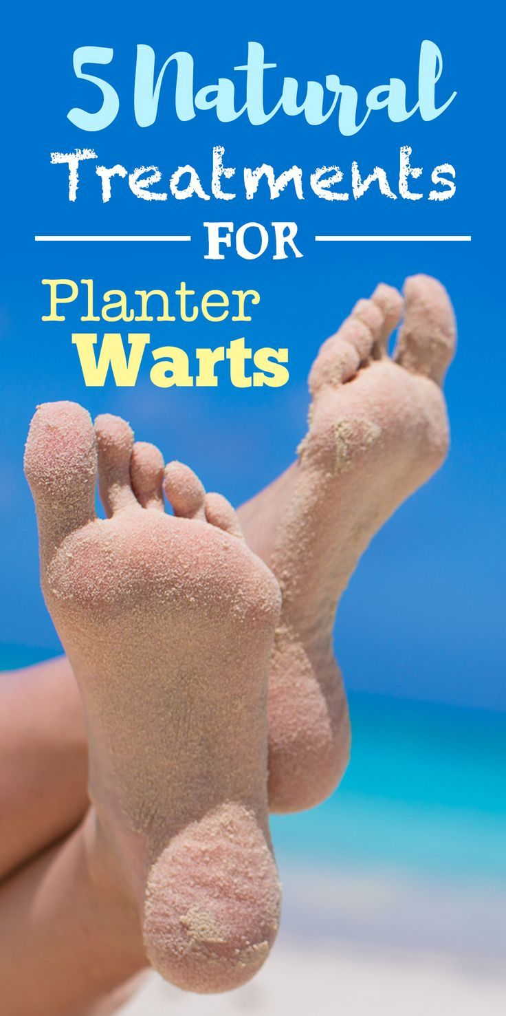 How And Why To Treat Plantar Warts Naturally 5 Ways Essential