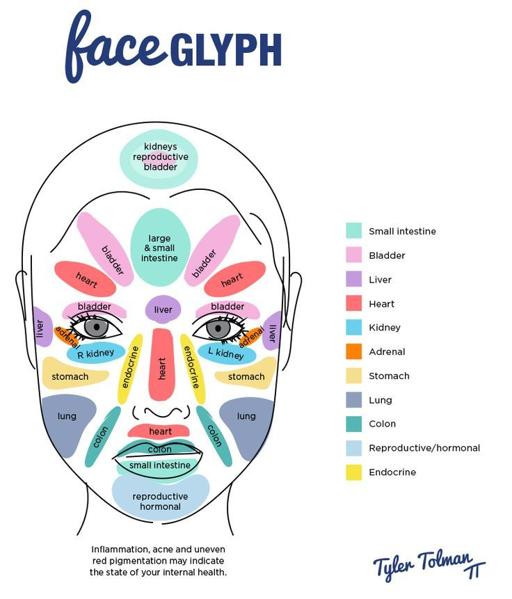 understanding what causes rosacea through just looking at your face rh pinterest ca acne face diagram causes Pimple Popping