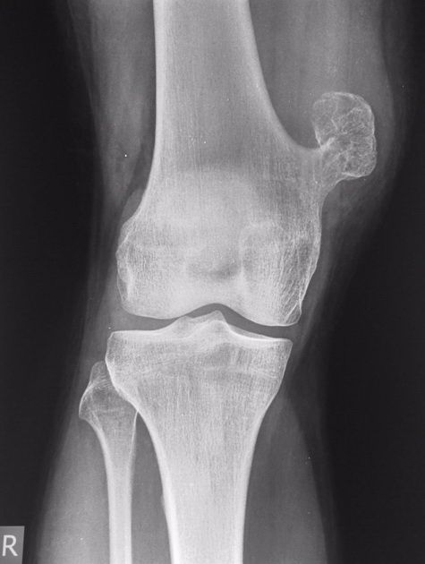 Osteochondroma = pedunculated bone with cartilage cap around knee or ...