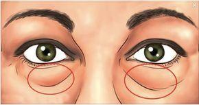Remedios naturales para las bolsas bajo los ojos