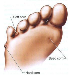 Corn Between Toes Natural Remedy