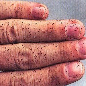 Bird Mites On Human Hand Everything Poultry Mites On