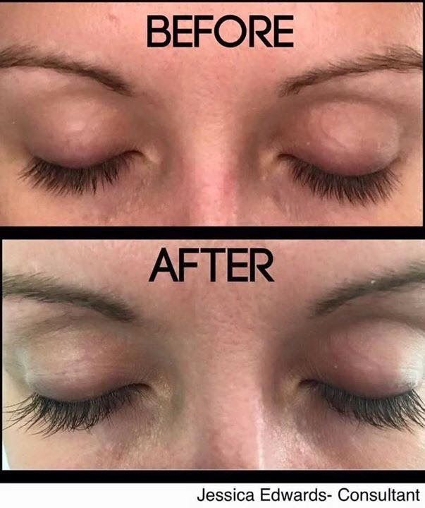 This Is The Site You Need To Look At Before You Start Your: Look At Her 60 Day Results! Lash Boost By Rodan + Fields