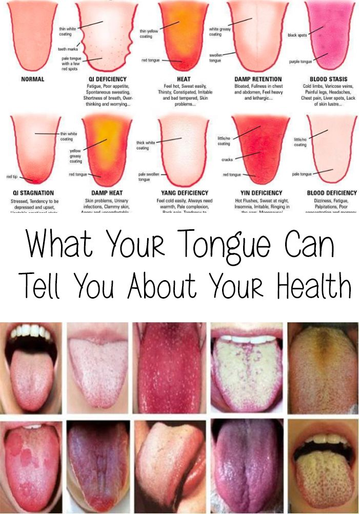 Tongue - What Your Tongue Can Tell You About Your Health | Pinterest ...