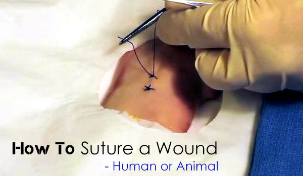 How to Suture a Wound - SHTF, Emergency Preparedness, Survival Prepping, Homesteading