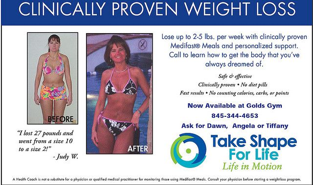 What Is A Weight Loss Surgery