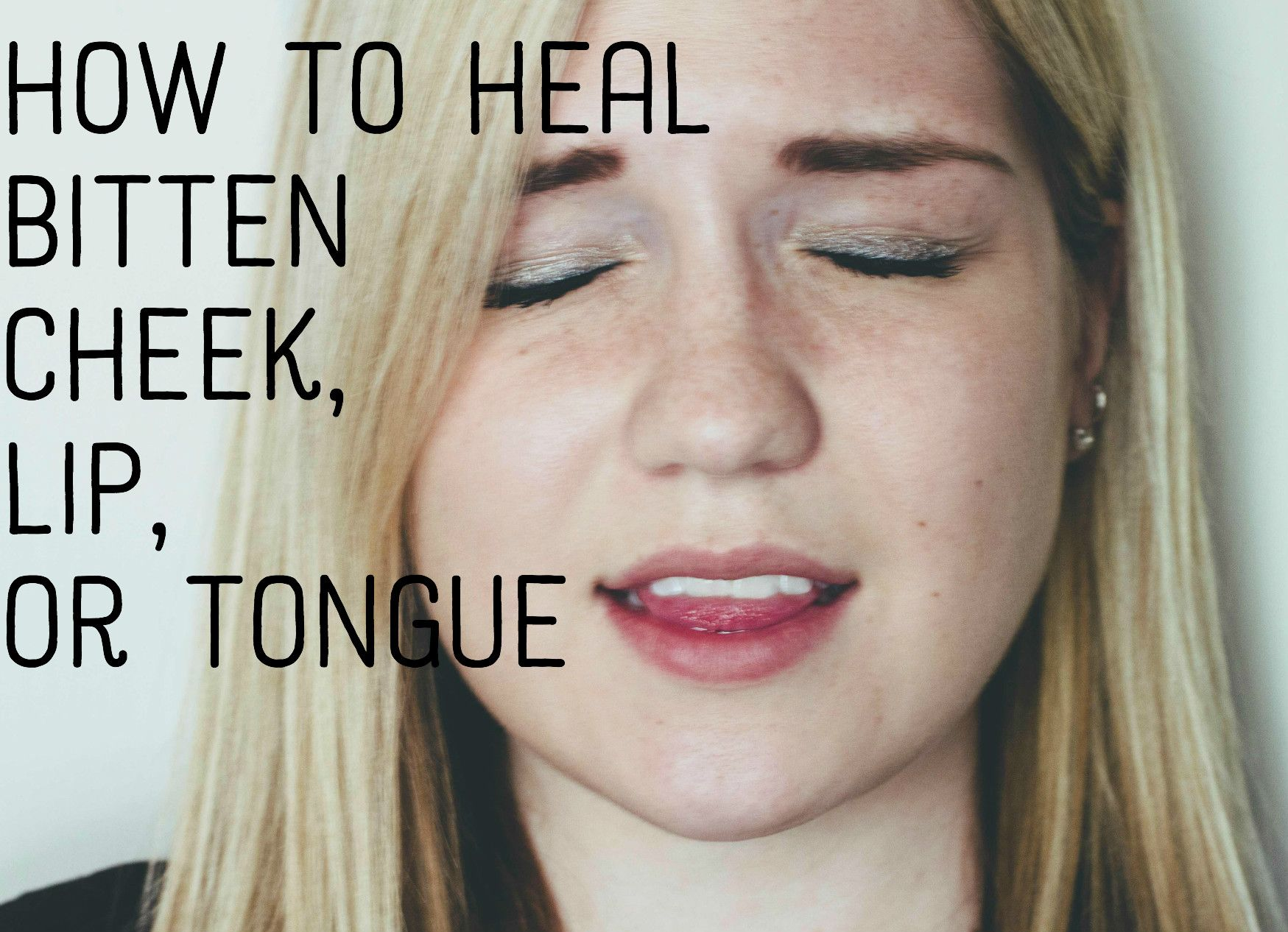 How To Treat And Heal A Bitten Tongue Lip Or Cheek Blister On Lip Lip Healing Blister On Tongue