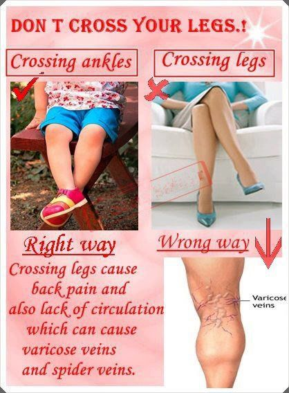 does crossing your legs cause spider veins