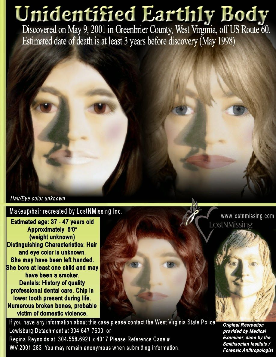 ALTA JANE DOE: WF, 37-47, found in Greenbrier County, WV - 9 May 2001 3d6d88d3887fe3ff74967c0468d52053