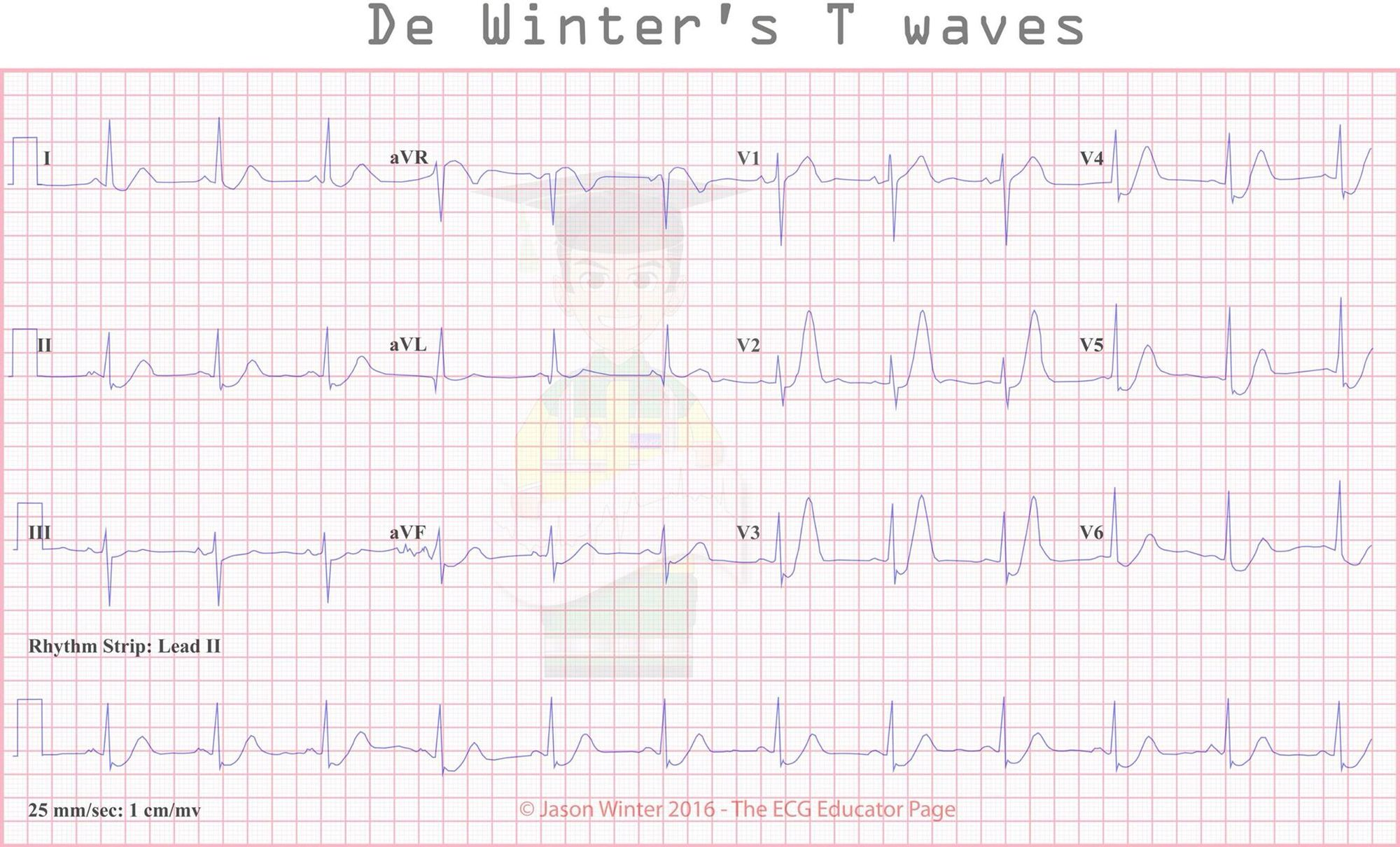 Pin by Akshayatoraskar on ECG Ekg, Cardiology, Internal