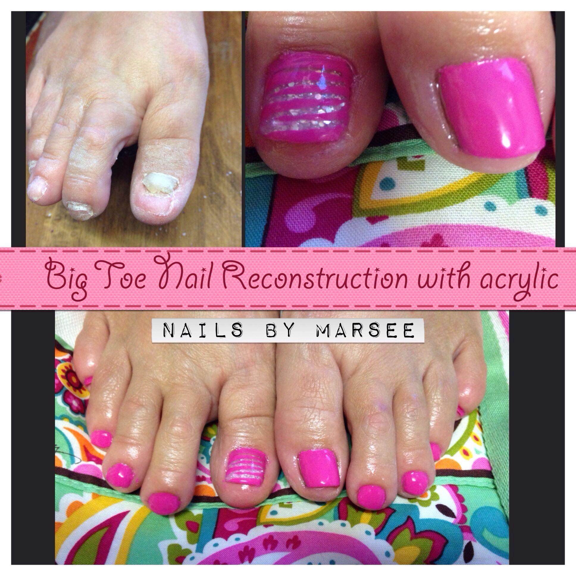 Toenail Reconstruction Toe Nails Acrylic Nails At Home Acrylic Nails