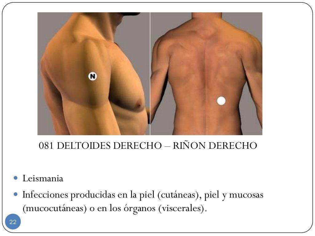 081 DELTOIDES DERECHO – RIÑON … | Par biomagnetico Biomagnetic ...