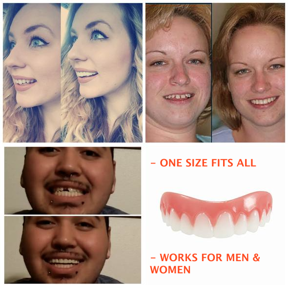 The Amazing Zippy Smile® is part of Smile teeth - BUY MORE, SAVE MORE (LIMITEDTIME ONLY) Buy 2 and Get 10% OFF with Coupon Code 10OFFNOW Buy 3 and Get 12% OFF with Coupon Code 12OFFNOW Buy 4 and Get 15% OFF with Coupon Code 15OFFNOW    100% Satisfaction Guaranteed  This item is NOT available in stores  FREE SHIPPING WORLDWIDE (LIMITEDTIME) Have  Big Smile Confidence