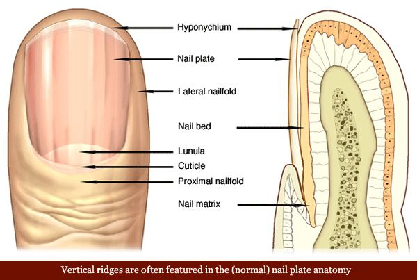 Vertical Ridges In The Nail Plate Usually Represent A Normal Sign