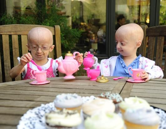 The stories of children with progeria are so inspirational. Even though they have a rare disease, they are more confident and happy than an average person without this debilitating disease. They are beautiful and people should learn from them to be thankful for who you are and what you can do.